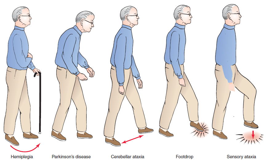 the characteristics and treatment of parkinsons disease a progressive neurological disorder Parkinson's disease is a progressive neurologic disorder affecting the brain centers that are responsible for control and regulation of movement it is characterized by bradykinesia (slowness of movement), tremor, and muscle stiffness or rigidity (katzung, mastes, & trevor, 2012).